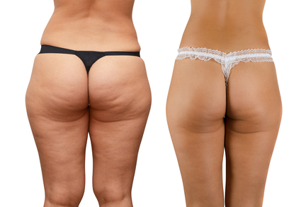 cellulite reduction from cellulite factor