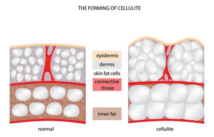 cellulite formation diagram